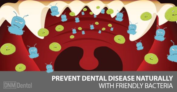 Dental-Disease-DNM-2
