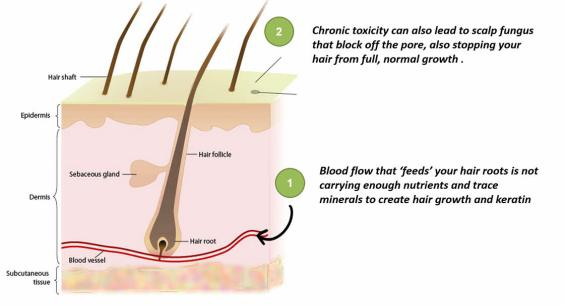 Hair-Loss-Caused-by-lack-of-MSM