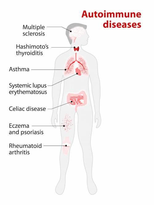 GetNaturopathic-Autoimmune-Diseases-Info