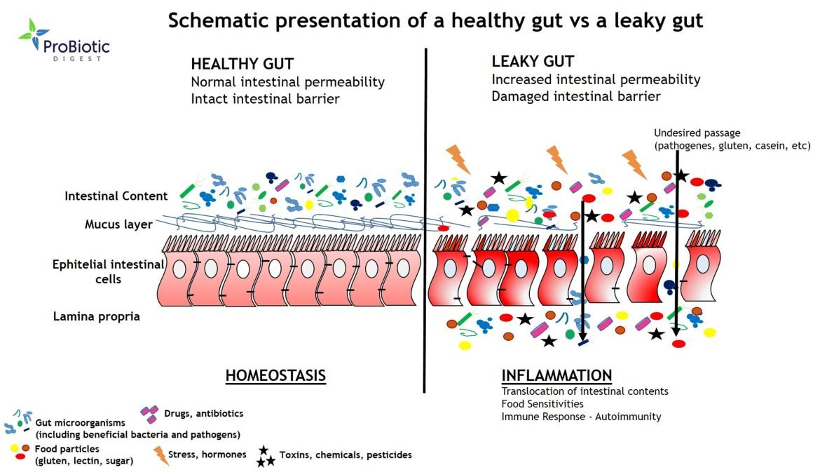 Healthy-Gut-vs-Leaky-Gut