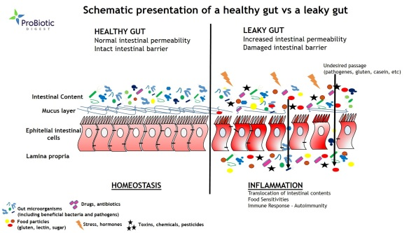 Healthy-Gut-vs-Leaky-Gut