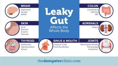 Impact-of-leaky-gut-768x432