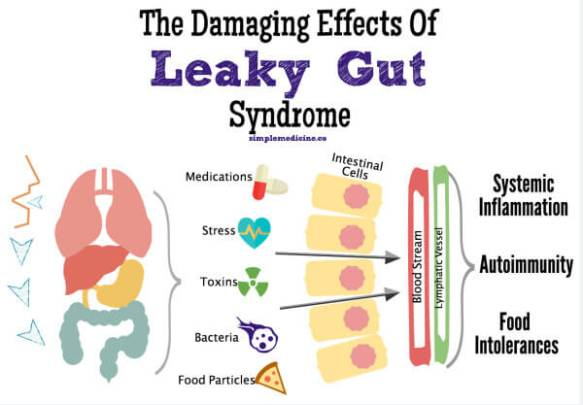Leaky-Gut-Syndrome