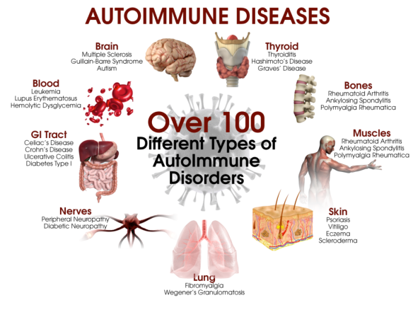 People-with-autoimmune-disorders