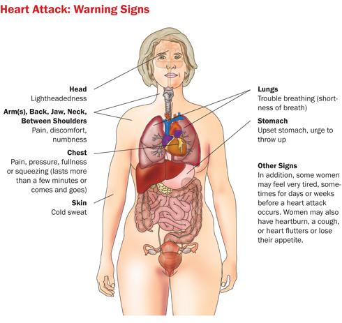 heart-attack-diagram1