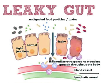 leaky-Gut