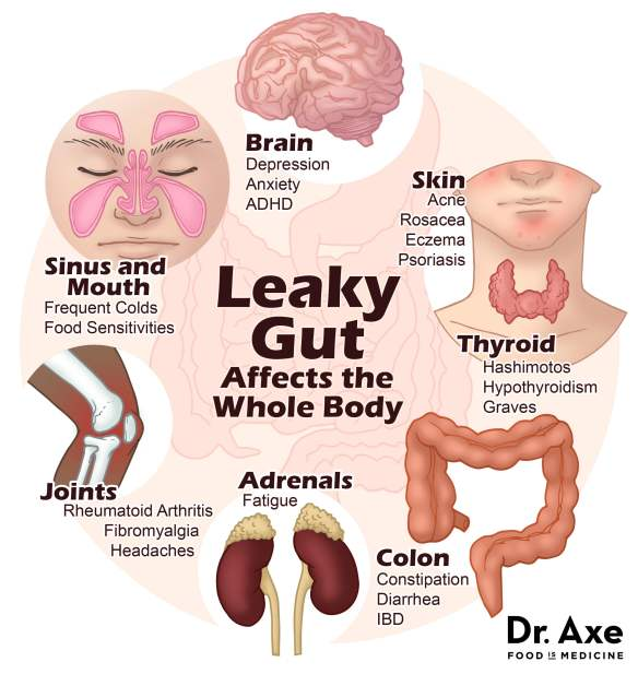 leaky-gut-image