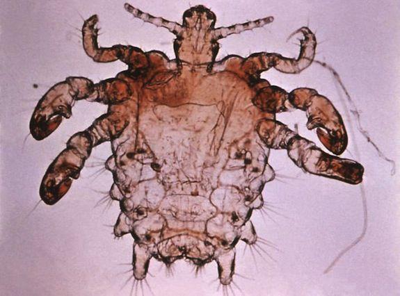 20130114092015pthius_pubis_-_crab_louse