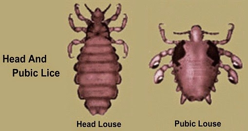 head-lice-and-pubic-lice1