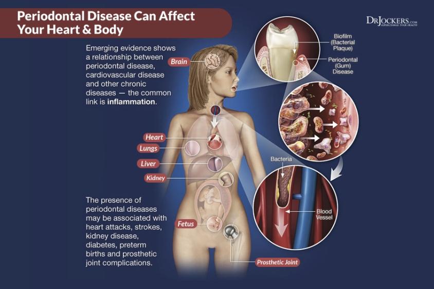peridontal-disease