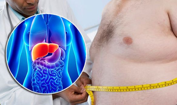 Fatty-liver-disease-Inflammation-can-spread-to-other-organs-843901