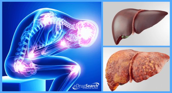 fatty-liver-warning-signs