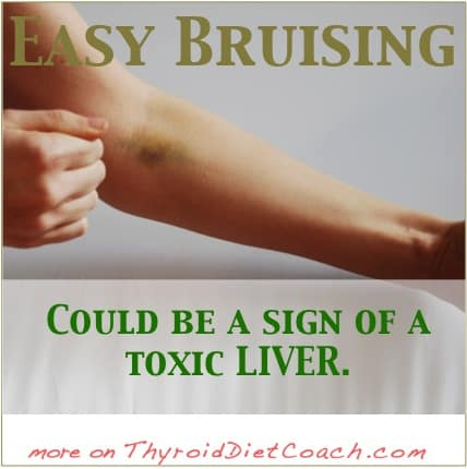 Liver-Bruising-Connection