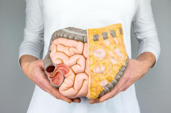 person-holding-a-model-of-intestines