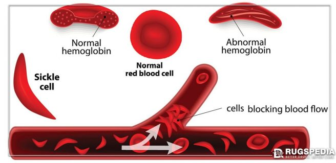 Sickle-Cell-anaemia-1170x570