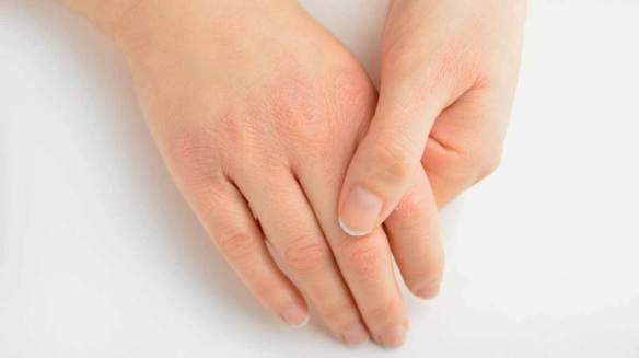 vitamin-a-deficiency-symptoms-1296x728-feature