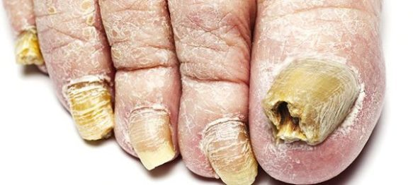 symptoms-of-toenail-fungus-600x270