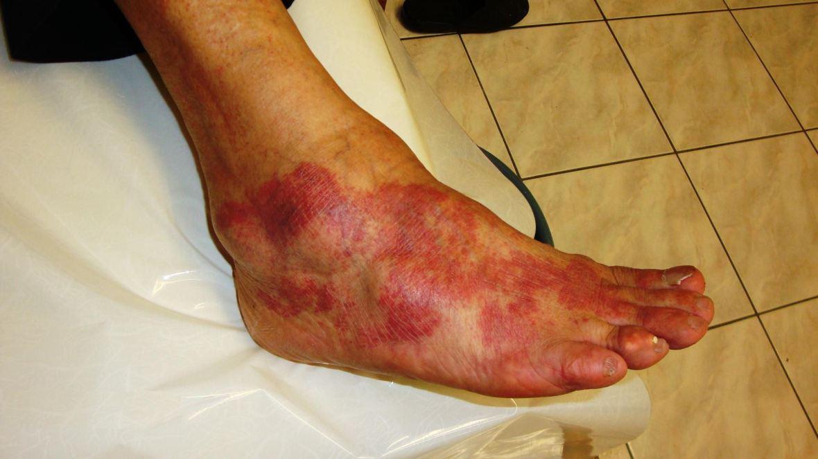 Allergy_to_Antibiotic_Cefaclor