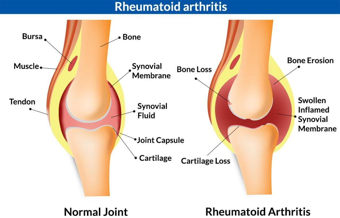 rheumotoid_Arthritis