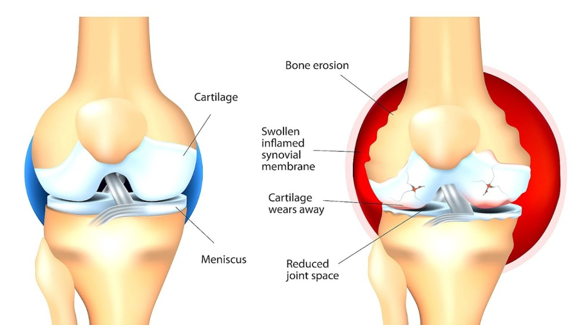 Types of arthritis that affects the knees - kneesafe.com-757829