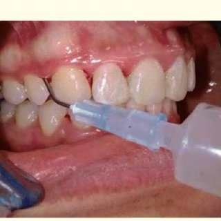 Application-of-the-gel-by-blunt-needle-immediately-after-SRP_Q320