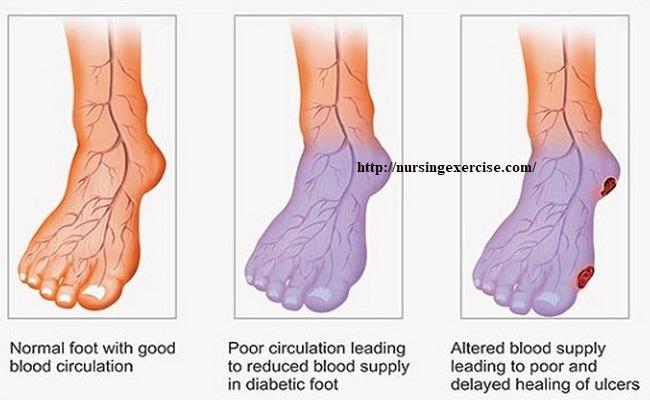 poor-blood-circulation...jpg