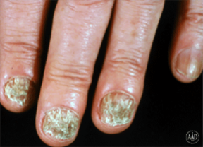 ringworm-nail-infection-several-symptoms