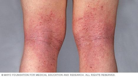 sn00016-atopic-dermatitis