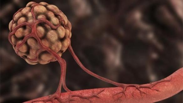 angiogenesis-in-cancer-322818.jpg