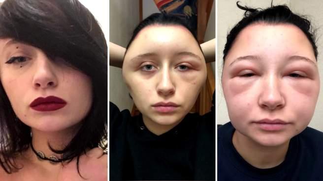 hair-dye-allergic-reaction