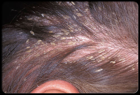 hair_scalp_s4_yellow_dandruff