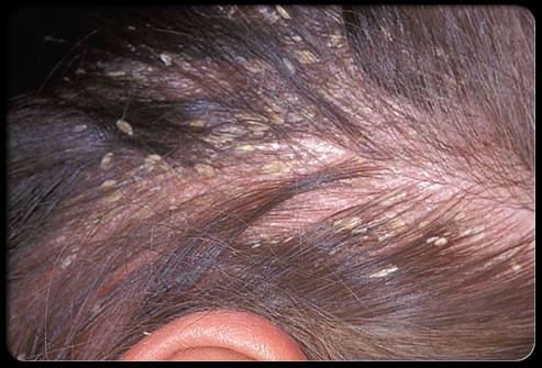 hair_scalp_s4_yellow_dandruff