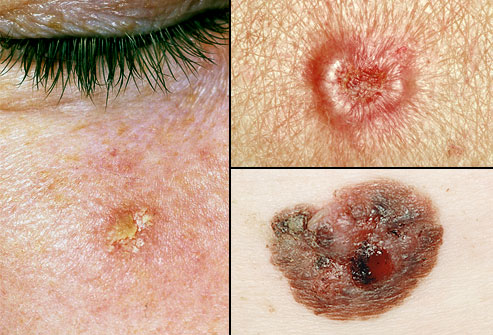 rm_collage_of_precancerous_skin_growths