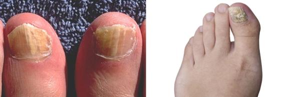 nail-fungus-600px