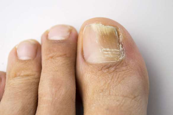 Onychomycosis-Getty-Manuel-F-O-0738c55a0e9446d3b7e9c39837a29c4f