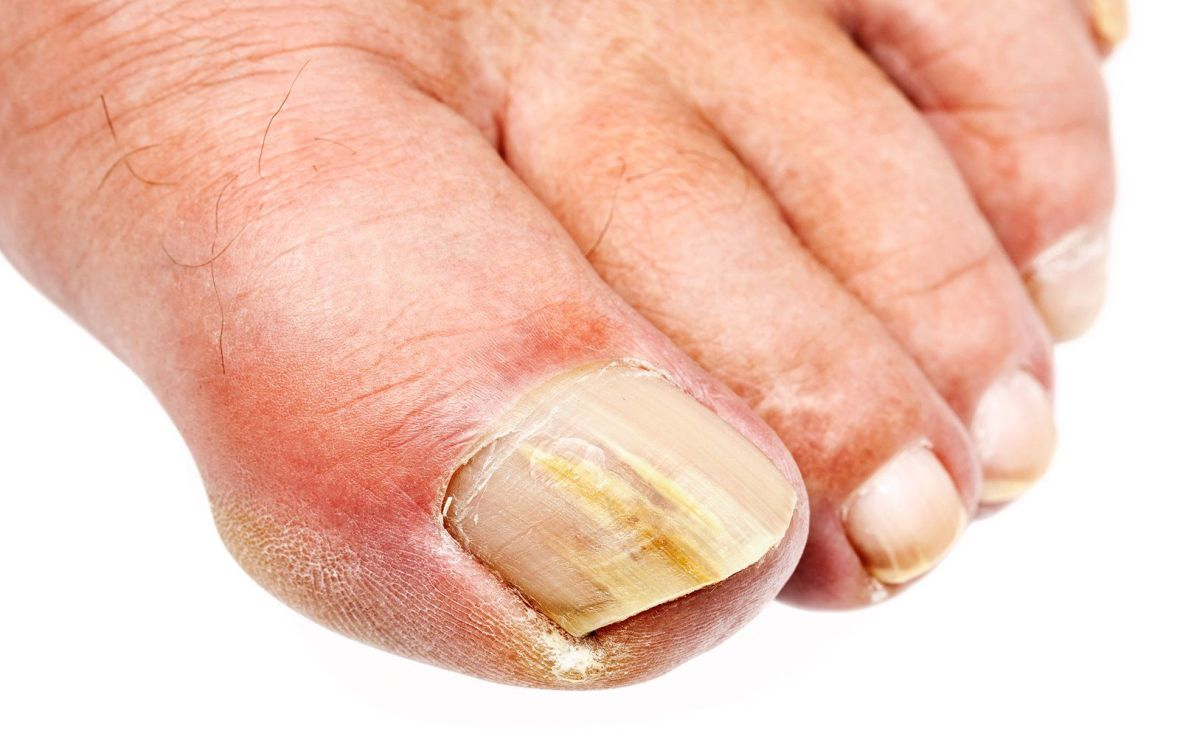 p-1-whats-up-with-the-toenails-1517492144